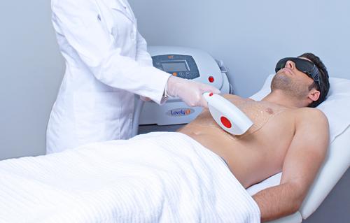depilación laser diodo hombres