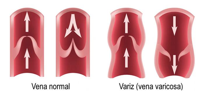tratamientos varices