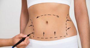 recuperación liposucción