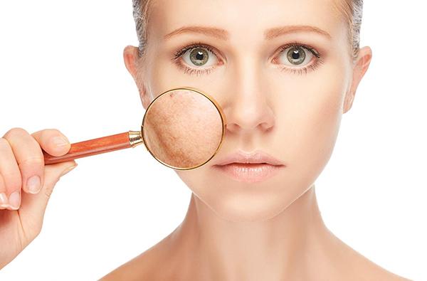cómo preparar la piel de la cara para el verano